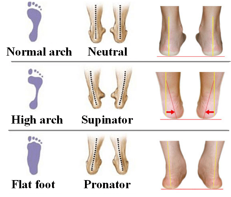 Gait Analysis - ResearchGateNet